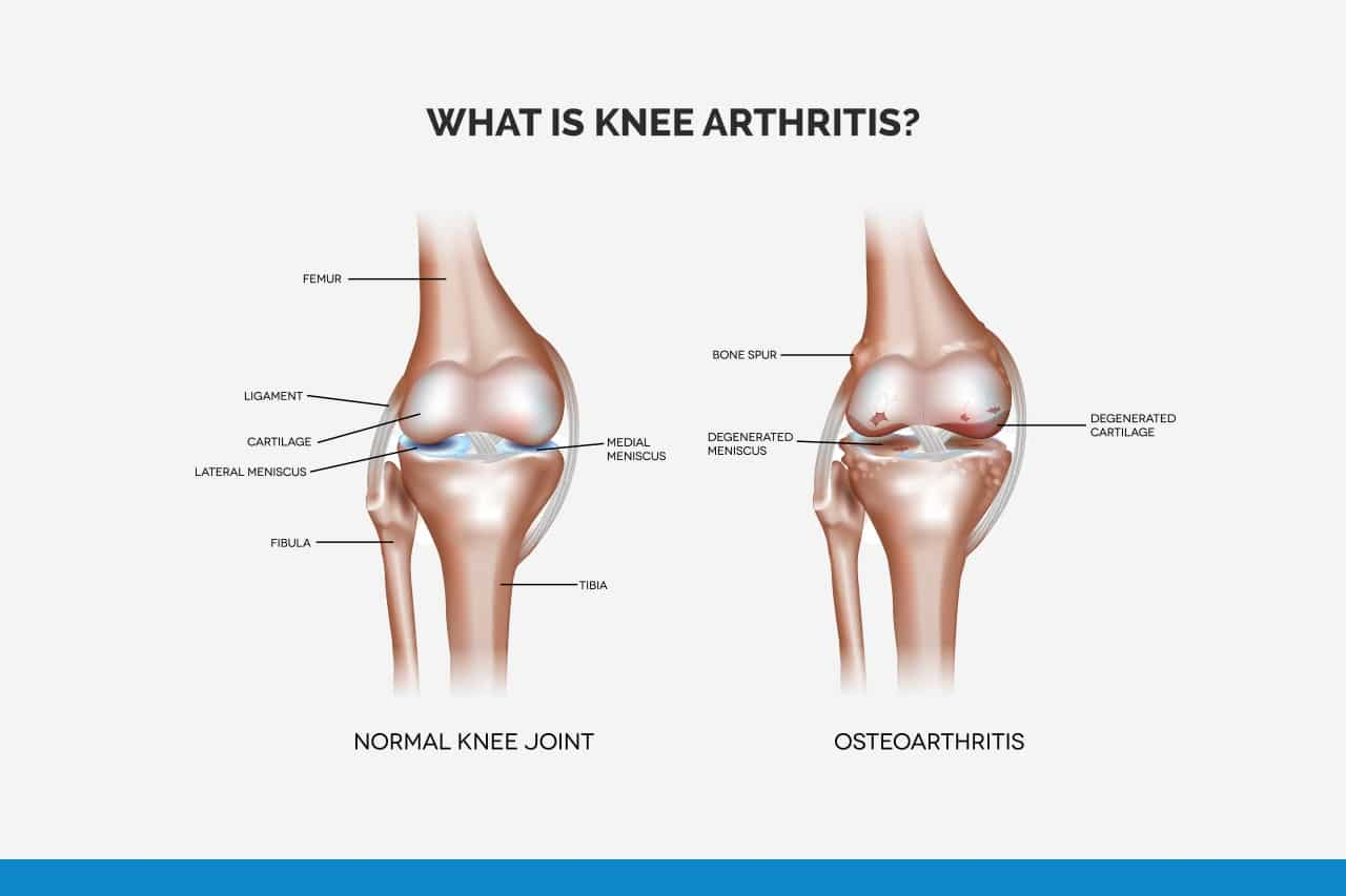 What is knee arthritis?