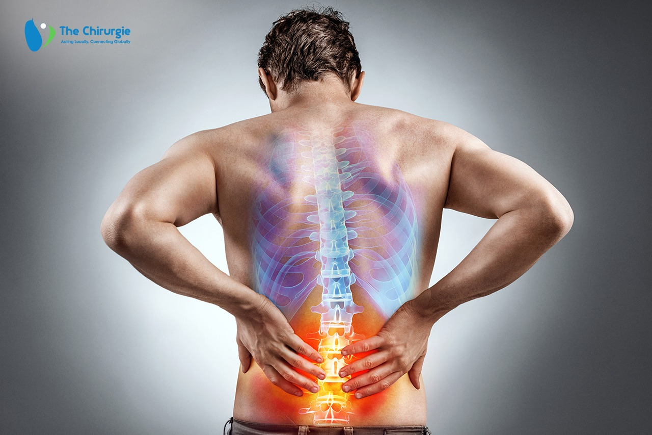 Back surgery thechirurgie-